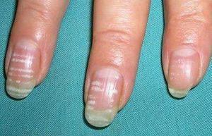 плохое состояние ногтей, может указывать на недостаток в организме кальция