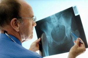 Факторы, влияющие на здоровье костей