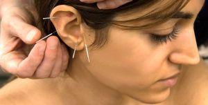 иглоукалывание в ухо