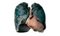 очищение легких от никотина