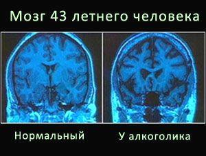 энцефалопатия при алкоголизме мкб 10