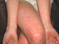 фото проявления аллергии на алкоголь
